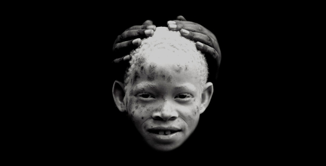 AlbinoBlackBoy
